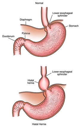 normal stomach vs. hiatal hernia